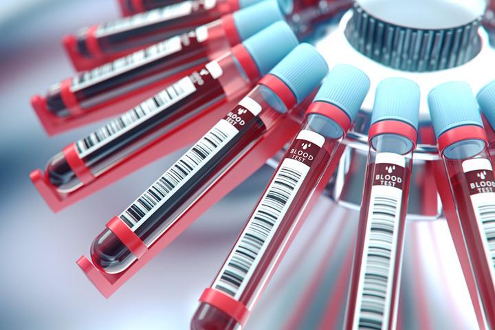 tube blood test analisi cliniche cerasole caserta esami del sangue